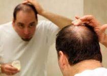 evitar queda de cabelo