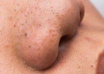 como tirar cravo do nariz